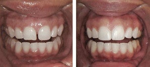 Diastema Bonding Before-and-After before 946217