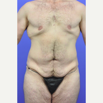 25-34 year old man treated with Breast Lift before 3145365