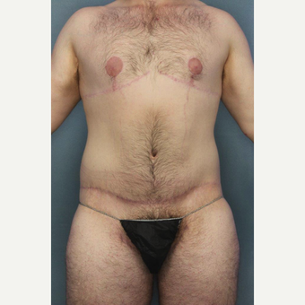 25-34 year old man treated with Breast Lift after 3145365