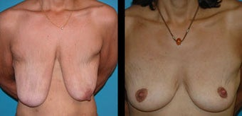 51 Year Old Woman - Breast Lift & Asymmetry Correction before 1086290