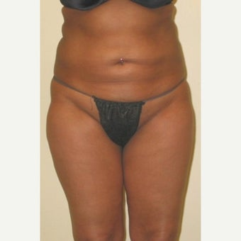 35-44 year old woman treated with Tummy Tuck before 1603488