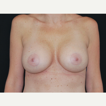 35-44 year old woman treated with Breast Implants after 3651232