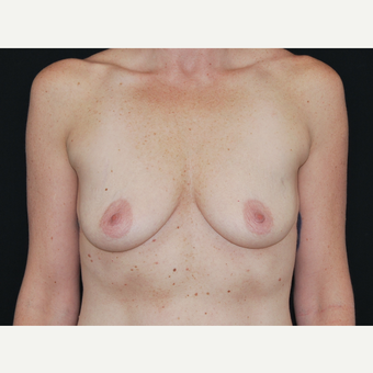 35-44 year old woman treated with Breast Implants before 3651232