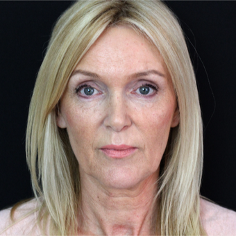 45-54 year old woman treated with Facelift before 3498635