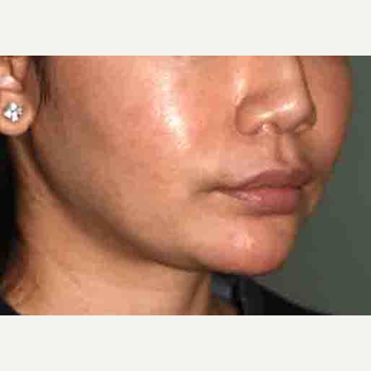 25-34 year old woman treated with a Custom Jawline Implant before 3599126