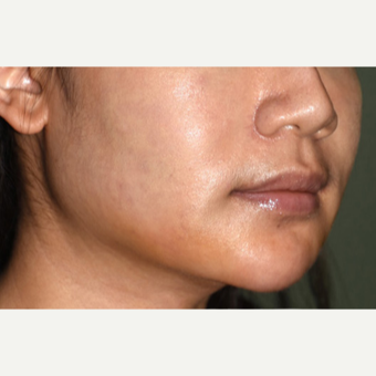 25-34 year old woman treated with a Custom Jawline Implant after 3599126