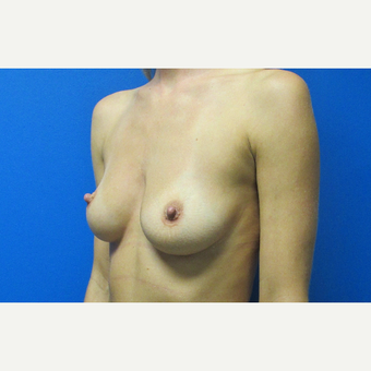 500cc High Profile Breast Implants before 3696498