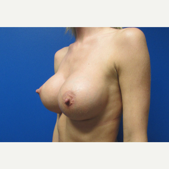 500cc High Profile Breast Implants after 3696498