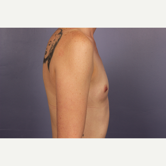 25-34 year old woman treated with Breast Augmentation before 3110208