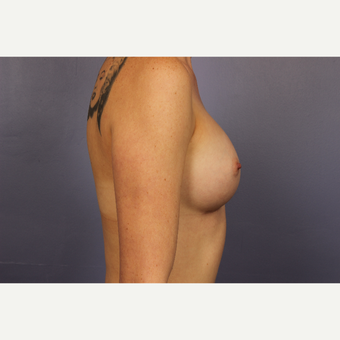 25-34 year old woman treated with Breast Augmentation after 3110208