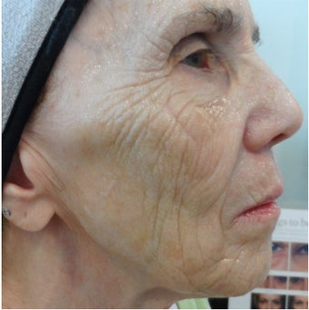 74 year old woman after 4 treatments with medical micro-needling using human growth factor serums before 1679500