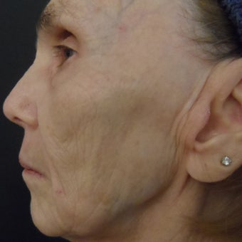 74 year old woman after 4 treatments with medical micro-needling using human growth factor serums 1679500