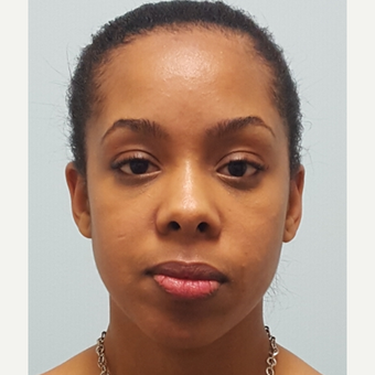 Lower blepharoplasty to treat under eye-bags on 24 year old woman.