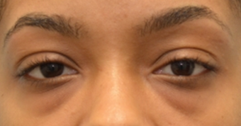Lower blepharoplasty to treat under eye-bags on 24 year old woman. 2593569
