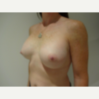 25-34 year old woman treated with Breast Implants after 3765760