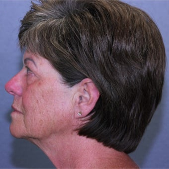 55-64 year old woman treated with Lifestyle Lift before 2062014