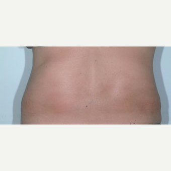 Liposuction after 3346235