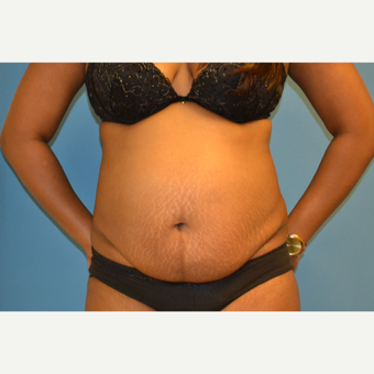 33- year old woman treated with Tummy Tuck before 3095480