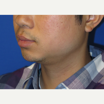 33 year old man treated with Chin Implant before 3384766