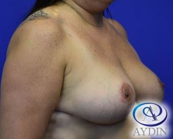 45-54 year old woman treated with Breast Lift after 3213862