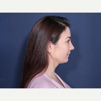 18-24 year old woman treated with Rhinoplasty (view 2 of 2) after 3776780