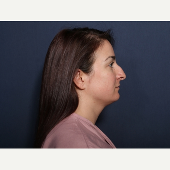 18-24 year old woman treated with Rhinoplasty (view 2 of 2) before 3776780