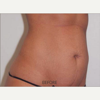 35-44 year old woman treated with Tummy Tuck before 3589481