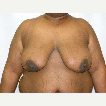 25-34 year old man treated with FTM Chest Masculinization Surgery before 2426344