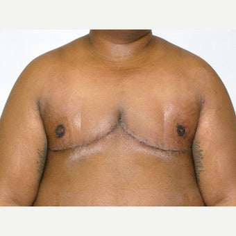 25-34 year old man treated with FTM Chest Masculinization Surgery after 2426344