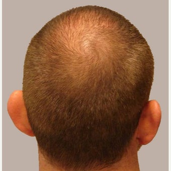35-44 year old male treated with FUE Hair Transplant after 1556146