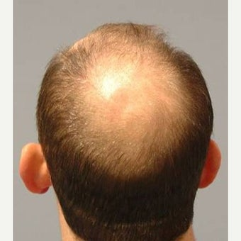 35-44 year old male treated with FUE Hair Transplant before 1556146