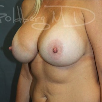 Breast Augmentation after 3246807