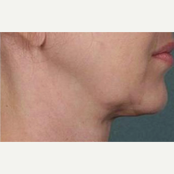 Woman treated with Kybella after 2067013