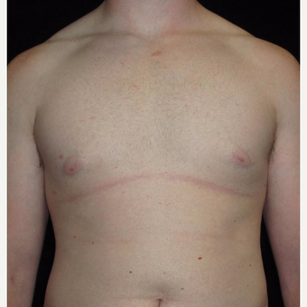 23 year old man treated with Male Breast Reduction after 3093765