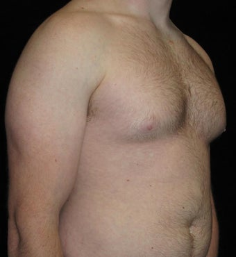 23 year old man treated with Male Breast Reduction 3093765