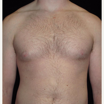 23 year old man treated with Male Breast Reduction before 3093765