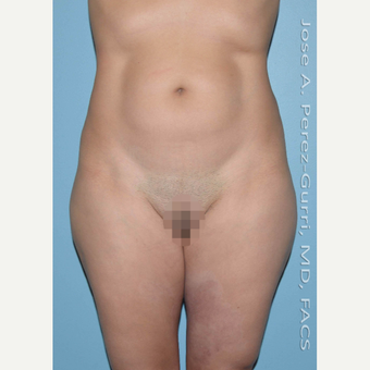 35-44 year old woman treated with Liposuction before 2993938