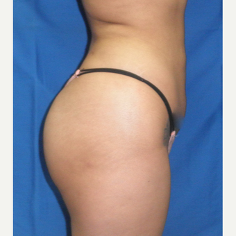 25-34 year old woman treated with Brazilian Butt Lift after 3056480