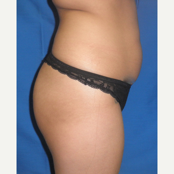25-34 year old woman treated with Brazilian Butt Lift before 3056480