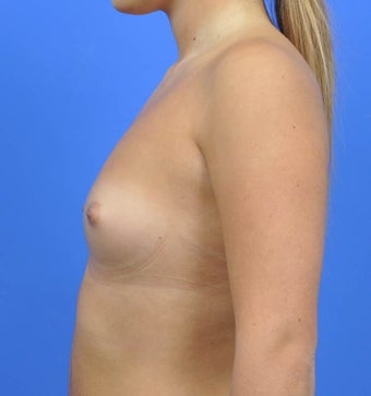 18-24 year old woman treated with Breast Augmentation before 3033889