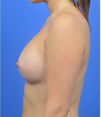 18-24 year old woman treated with Breast Augmentation after 3033889