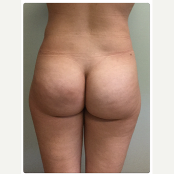 25-34 year old woman treated with Smart Lipo after 3098419