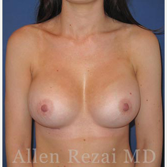 Bilateral Breast Augmentation - Pre- & 8 Weeks  Post-op after 3473956