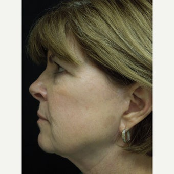 55-64 year old woman treated with Photofacial after 2297101
