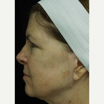 55-64 year old woman treated with Photofacial before 2297101