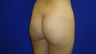 25 year old Brazilian Butt Lift 25 year old lady, 5'6 118 lbs. 800 cc fat to each cheek, 200 cc to each hip