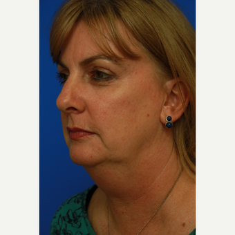 53-year old woman treated with Facelift before 3108615