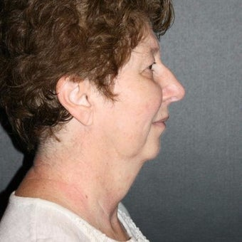 Woman treated with Chin Liposuction before 2661120