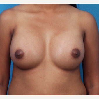 18-24 year old woman treated with Breast Augmentation after 3266368