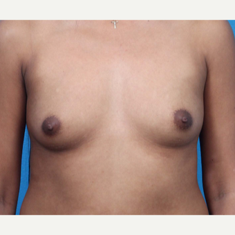 18-24 year old woman treated with Breast Augmentation before 3266368